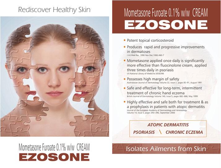 eczema guide topical corticosteroids